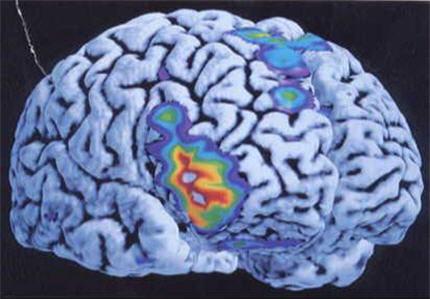 cerveau-index